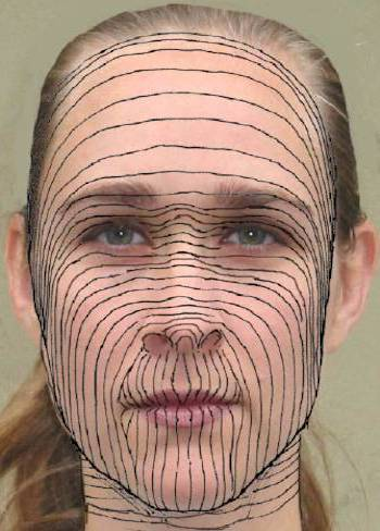 facial skin tension lines